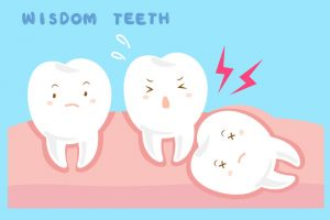 Wisdom tooth removal common causes